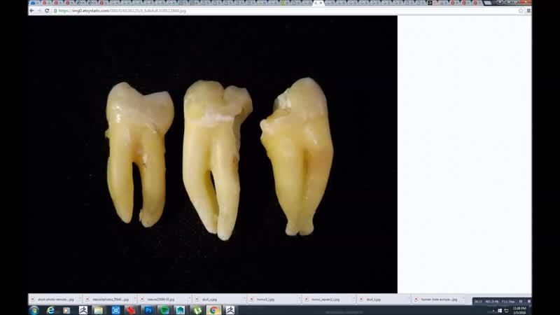 05_human_skull_jaw_and_teeth