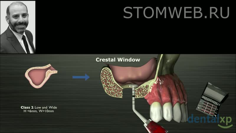 Crestal Sinus Approach A Hammerless Solution to the Indirect Sinus Lift