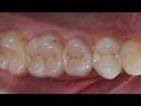 Реставрация и эндодонтическое лечение боковых зубов. Resto Endo of posterior teeth