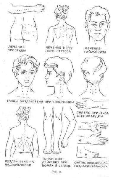 Точки на теле человека, снимающие боль.