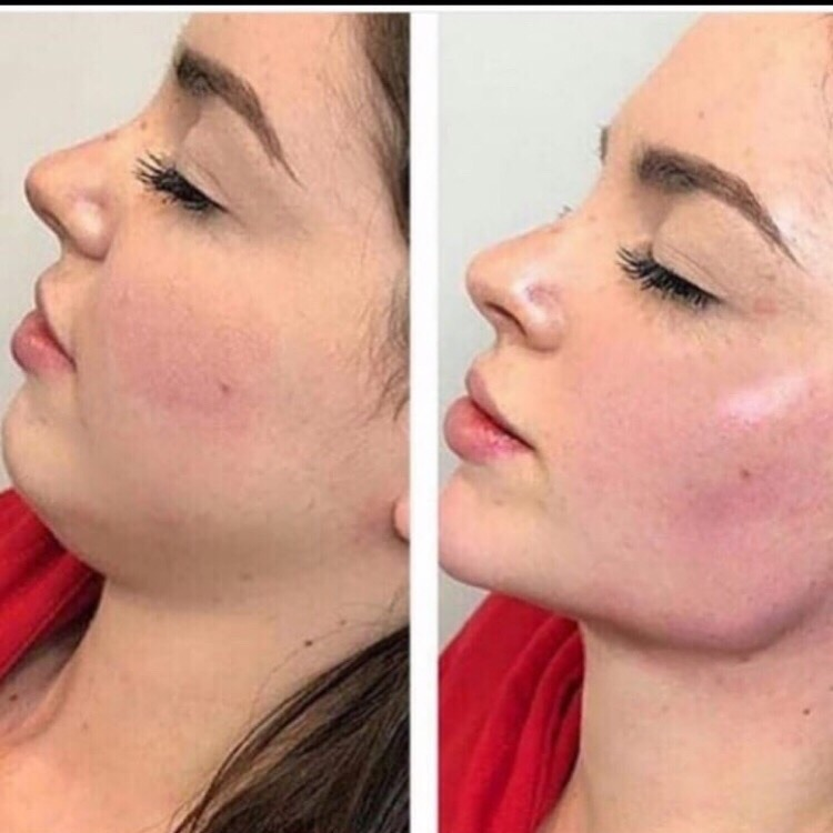 Срочно требуются модели на процедуру «Худое лицо» Эффект сразу от одной процедуры ❗ - цена 3000 р !