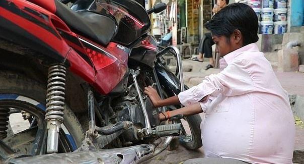 У жителя Индии без остановки растет желудок Когда Суджиту Кумару из Индии было 7 лет, у него внезапно начал увеличиваться желудок. Сейчас ему 19 и желудок занял большую часть живота, заставляя