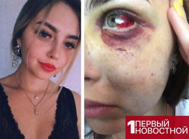 В Москве парень избил 17-летнюю девушку просто из-за того, что та не захотела с ним знакомиться Девушка написала заявление в полицию. Что делать с такими