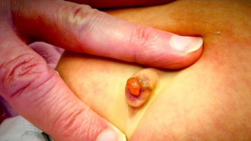 UNUSUAL GROWTH ON INFANT BELLY BUTTON Umbilical Granuloma Dr Paul