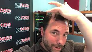 Hair Transplant San Diego Testimonial Clint August from 101 5 KGB Orange County