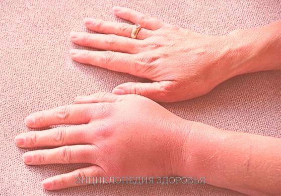 Лечение лимфостаза народными средствами